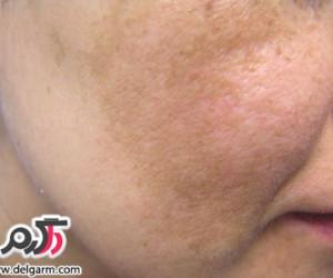 علت و درمان لک های سفید روی پوست