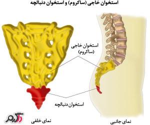 ساکروم(استخوان خارجی)چیست؟