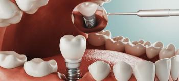 قیمت ایمپلنت دندان در سال ۱۴۰۰