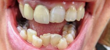 آیا کراودینگ و نامرتبی دندان قابل درمان است؟