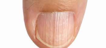 علت شیار و خطوط روی ناخن چیست؟