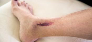 چند راه ساده برای از بین بردن لکه های تیره ساق و مچ پا