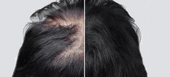 تب و نگرانی، علت ریزش مو بعد از کرونا