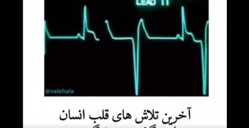 کلیپ دپ ضربان قلب