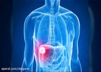 نشانههای آشکار و پنهان اختلالات و بیماری های کبدی (فیلم)