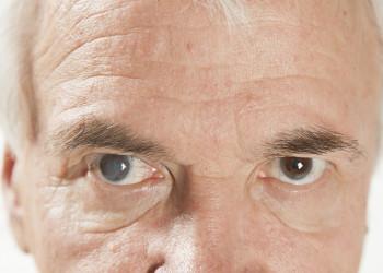 از علائم تا درمان سریع آب مروارید چشم (كاتاراكت)