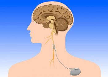 آشنایی با فرایند تحریک عصب واگ به منظور بهبود شرایط روحی و روانی(بخش اول)