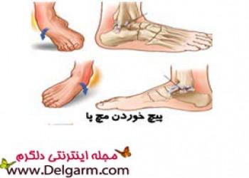 کشیدگی مچ پا با 4 ورزش مناسب و مفید