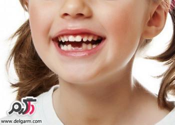 دانستنی هایی درباره ی لق شدن دندان کودکان