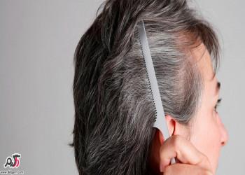 عوامل سفید شدن مو در جوانی