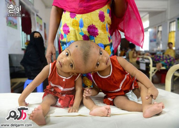 رابعه و روکیا بنگلادشی دو نوزاد به هم چسبیده