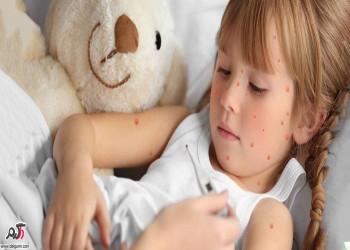 علائم آبله مرغان در کودکان به همراه سریع ترین راه درمان