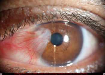 علت لکه سفید روی چشم چیست؟