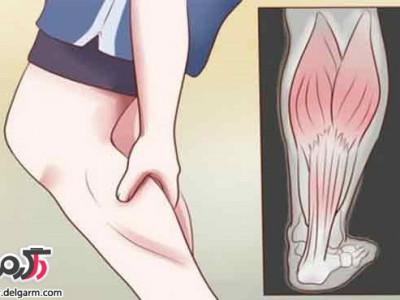 علت سفتی و گرفتگی عضلات ساق پا چیست؟علائم گرفتگی عضلات ساق پا چیست؟هر کس ممکن است دچار گرفتگی عضلانی شود درد ساق پا از علائم عمومی با طیف گسترده ای از علل می باشد که بسیاری از آنها، مانند آسیب ها، ممکن است آشکار باشد