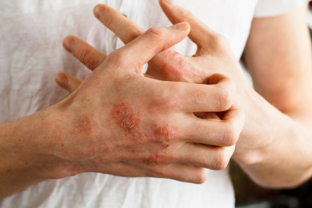 اگزما پوست: 13 راهکار سریع برای درمان اگزما