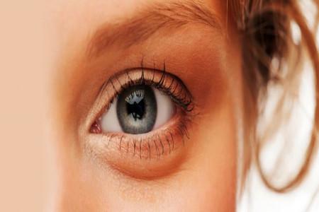 تزریق چربی زیر چشم برای رفع گودی و کبودی