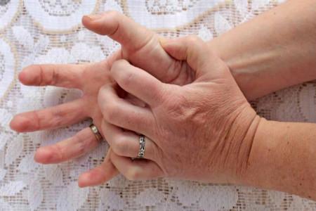 راه های مناسب برای درمان اگزمای پوستی