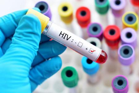 علائم ایدز بعد از روابط جنسی پر خطر و پاسخ به سوالات کاربران