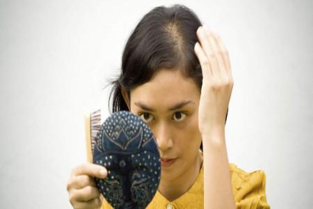 همه چیز درباره ریزش موی سکه ای، از دلایل ریزش سکه ای مو تا راه درمان