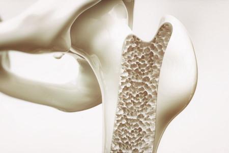 تاثیر رژیم غذایی مدیترانه ای در پوکی استخوان زنان مسن