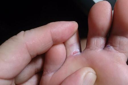 علت پوستهپوسته شدن میان انگشتان پا چیست؟