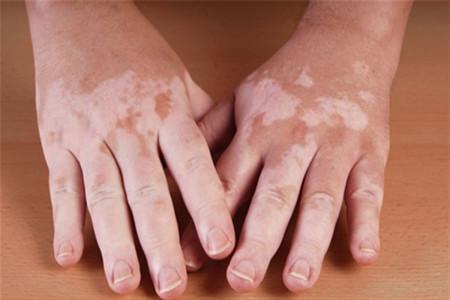 درمان ویتیلیگو با رژیم غذایی و سایر روش های درمان این بیماری پوستی
