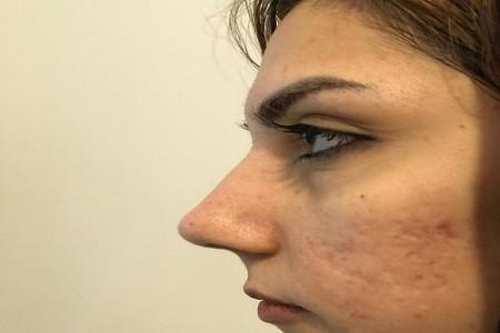 ماندگاری پلاسما جت (پی آر پی) بینی و صورت چقدر است؟