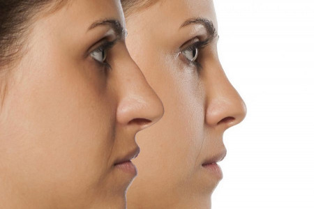 جراحی بینی با لیزر ممکن است ؟ روش کار لیزر بینی چگونه است ؟