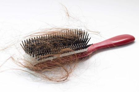 چگونه میتوان از ریزش مو جلوگیری کرد