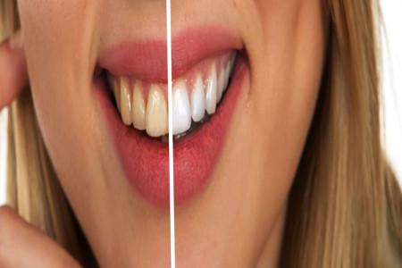 8 درمان خانگی برای سفید کردن دندان