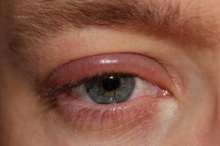 حساسیت پلک چشم و روشهای درمان آن