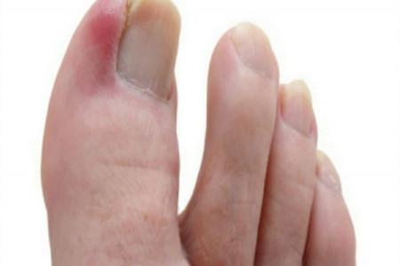 عفونت انگشت پا و راههای پیشگیری از آن
