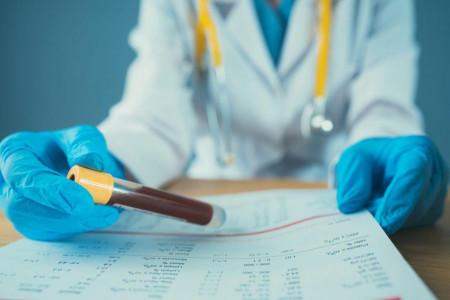 علت بالا و پایین بودن APO B در آزمایش خون