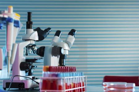 علت بالا و پایین بودن B2MG در آزمایش خون
