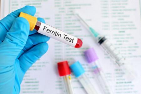 بررسی سطح فریتین خون
