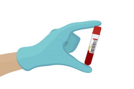 بررسی سطح خونی فنوباربیتال
