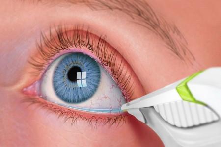 علت مثبت و منفی بودن EYE Discharge در آزمایش ترشحات چشمی