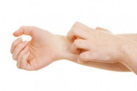 چه بیماری هایی با خارش پوست شروع میشوند ؟