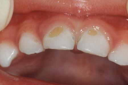 هر آنچه که از رویش تا پوسیدگی دندان باید بدانید