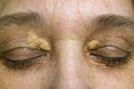 علت و درمان گزانتلاسما (دانه های زرد رنگ روی پلک) چیست ؟
