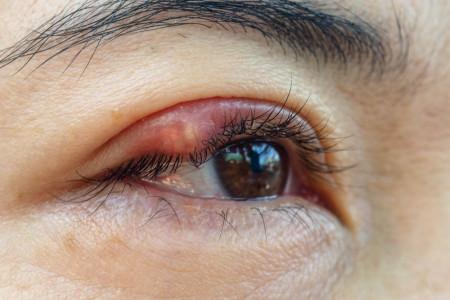 گل مژه : 10 درمان خانگی و بی نظیر گل مژه چشم