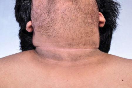 تیرگی گردن : 11 درمان خانگی برای رفع تیرگی گردن