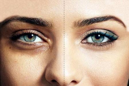 درمان قطعی سیاهی دور چشم با ماسک سیب زمینی