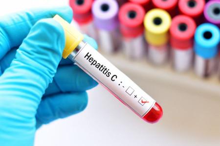 هپاتیت سی : 8 روش خانگی فوق العاده برای درمان هپاتیت C