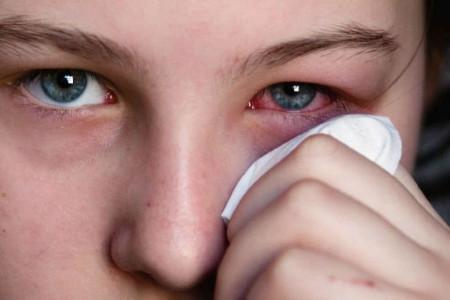 التهاب چشم : 11 راهکار خانگی برای درمان عفونت چشم