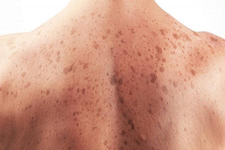 انواع سرطان پوست کدامند و چگونه ایجاد میشوند ؟