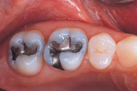 نحوه پر کردن دندان در خانه   چگونه دندان را در خانه پر کنیم ؟
