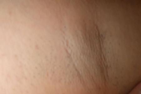 10 درمان خانگی برای از بین بردن جوش زیر بغل