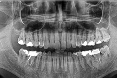 526 دندان اضافه در دهان کودک 7 ساله هندی + فیلم