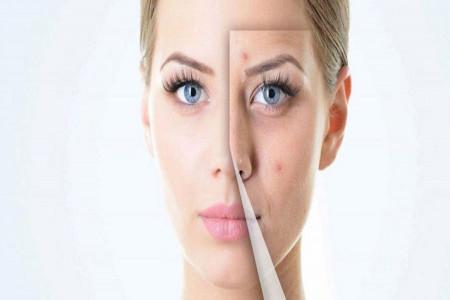 معرفی 7 ماسک برای درمان فوری جوش صورت